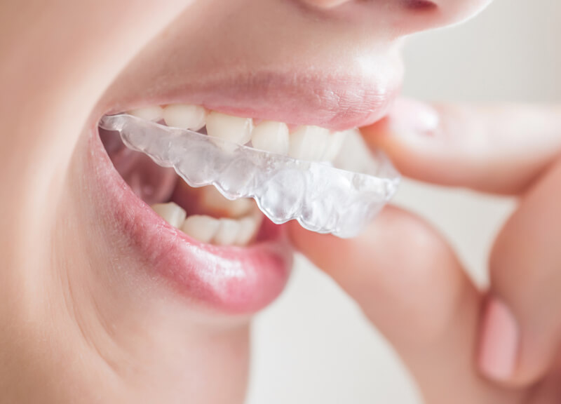 Invisalign clear aligner braces