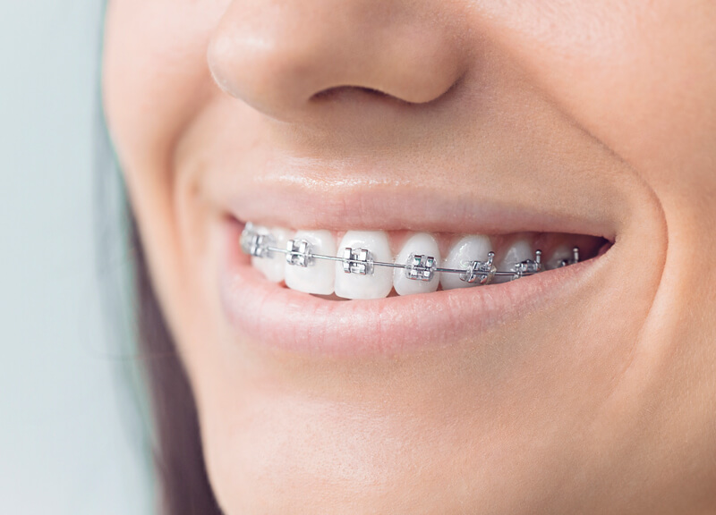 Traditional fixed metal braces