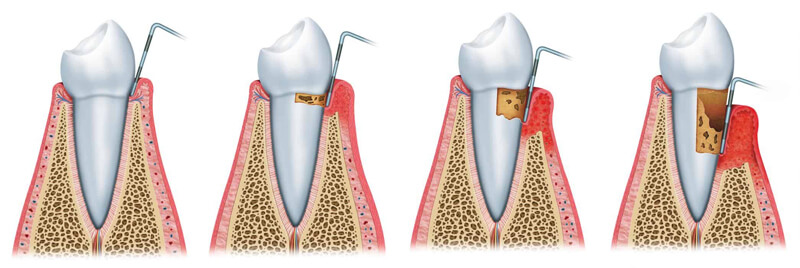 Periodontology Stages of Gum Disease