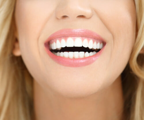 Tooth Contouring (Enameloplasty)